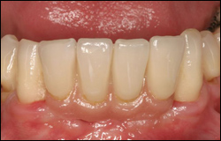After  Implant bridge supported by two implants with pink porcelain to mimic missing gum tissue.