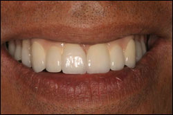 Before Patient missing all upper teeth wearing a denture.