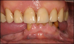 Before Deficient complete upper denture and failing dentition.
